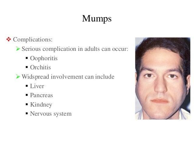 Mumps symptom adult