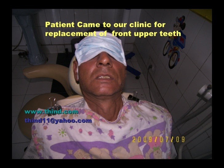 Patient Came to our clinic for      replacement of front upper teeth     www.thind.com thind11@yahoo.com