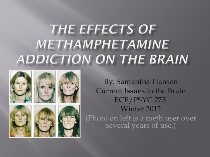 By: Samantha Hansen Current Issues in the Brain ECE/PSYC 275  Winter 2012 (Photo on left is a meth user over several years...