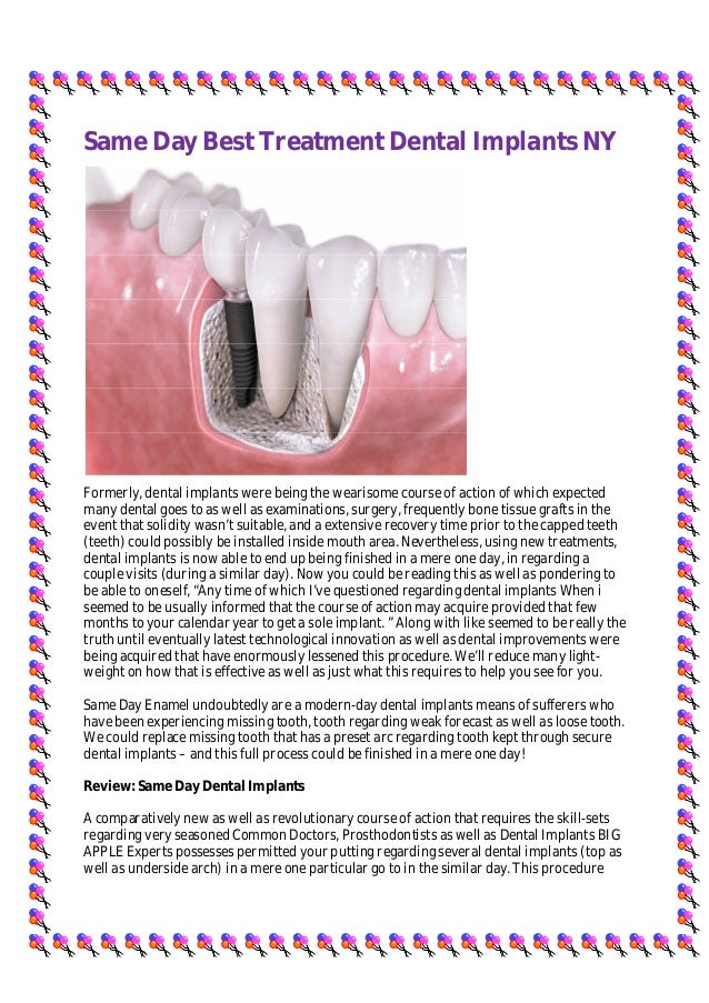 Same Day Best Treatment Dental Implants NY Formerly, dental implants were being the wearisome course of action of which ex...