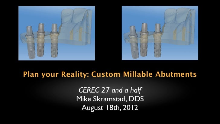 Plan your Reality: Custom Millable Abutments             CEREC 27 and a half             Mike Skramstad, DDS              ...