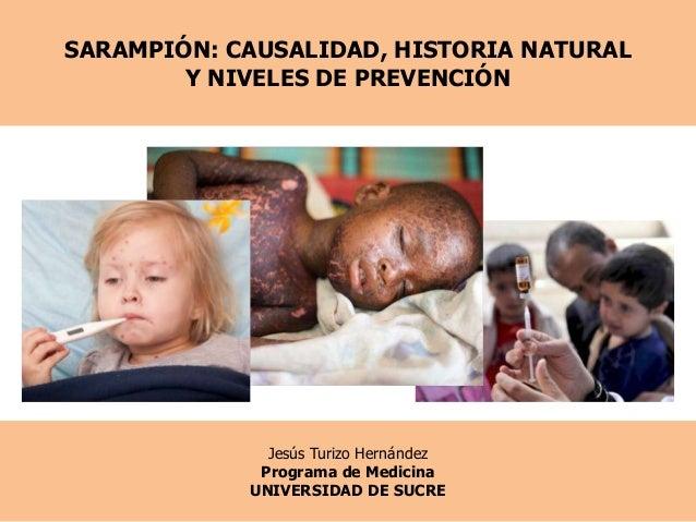 SARAMPIÓN: CAUSALIDAD, HISTORIA NATURALY NIVELES DE PREVENCIÓNJesús Turizo HernándezPrograma de MedicinaUNIVERSIDAD DE SUCRE