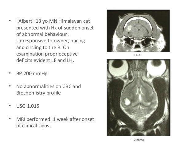 corticosteroids vasogenic edema