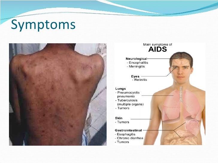 Hiv Symptoms in Males