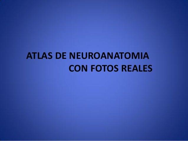 ATLAS DE NEUROANATOMIA CON FOTOS REALES