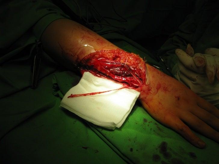 Sauve Kapandji Procedure