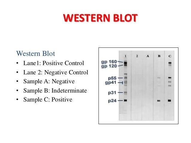 N Molecular Weight immunoblotting techniq...