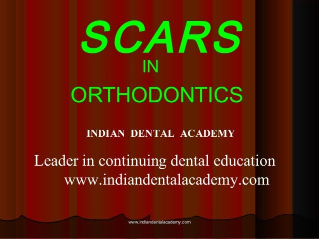 SCARSIN ORTHODONTICS INDIAN DENTAL ACADEMY Leader in continuing dental education www.indiandentalacademy.com www.indianden...