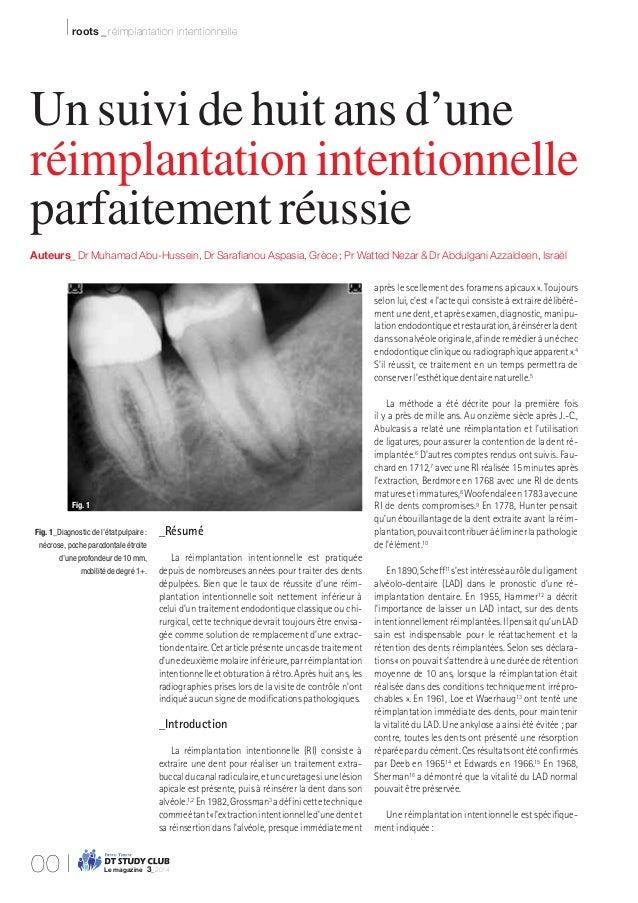 I roots _ réimplantation intentionnelle _Résumé La réimplantation intentionnelle est pratiquée depuis de nombreuses années...