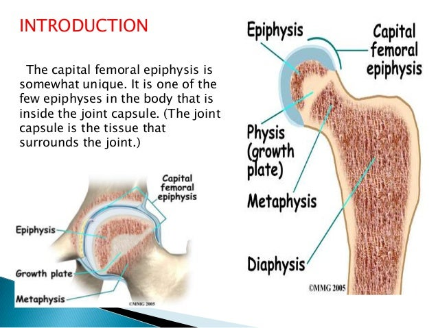 slipped capital femoral epiphysis essay