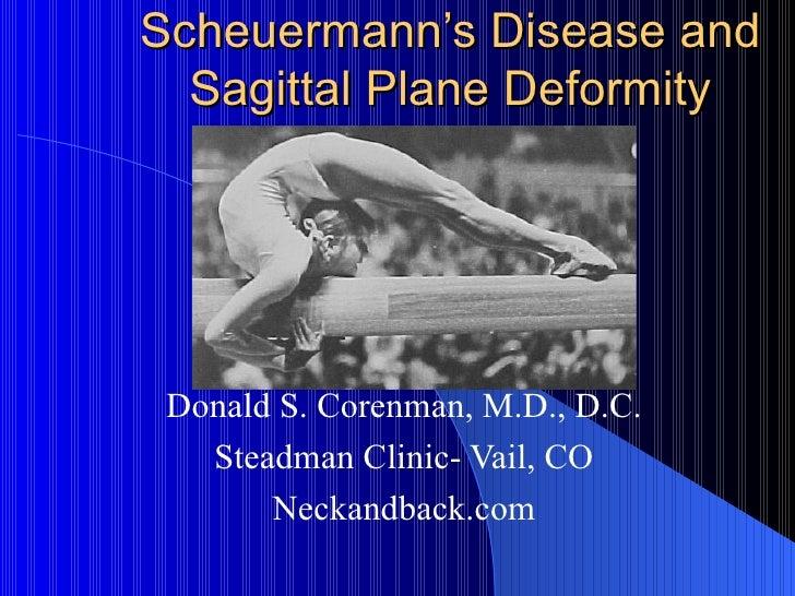 Scheuermann's disease   sagittal plane deformity   curvature of the spine   vail spine surgeon