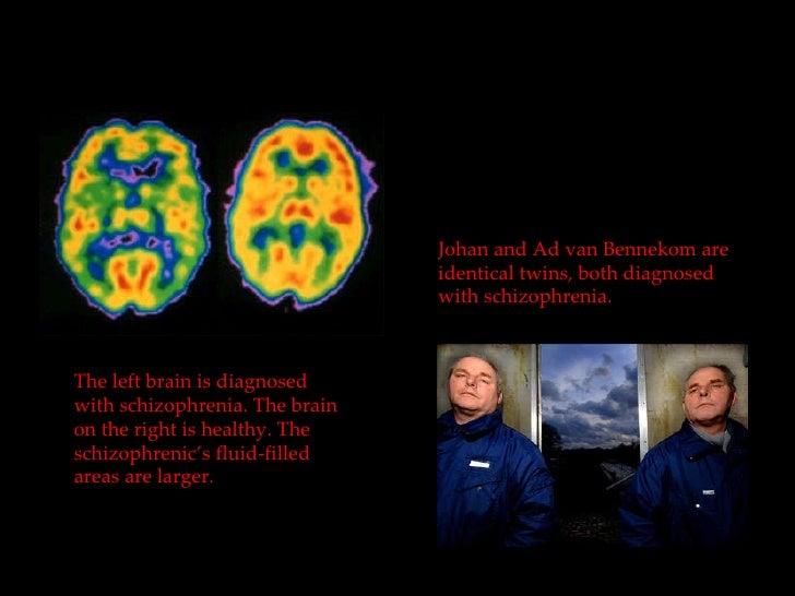 paranoid schizophrenia thesis