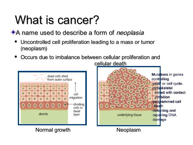 the cell and neoplasm cancer essay