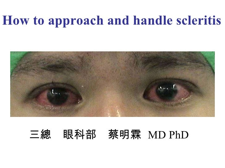 How to approach and handle scleritis  三總 眼科部 蔡明霖  MD PhD