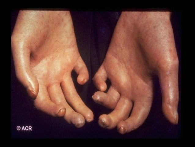 Sclerodactylie - 3 definities - Encyclo