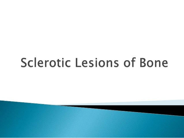  What does it mean that a lesion is sclerotic?  Well, generally, it means that it is due to a fairly slow-growing proces...