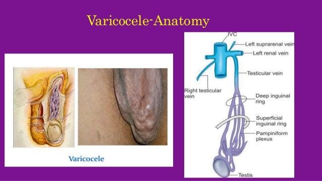 Varicocele - Pictures,...