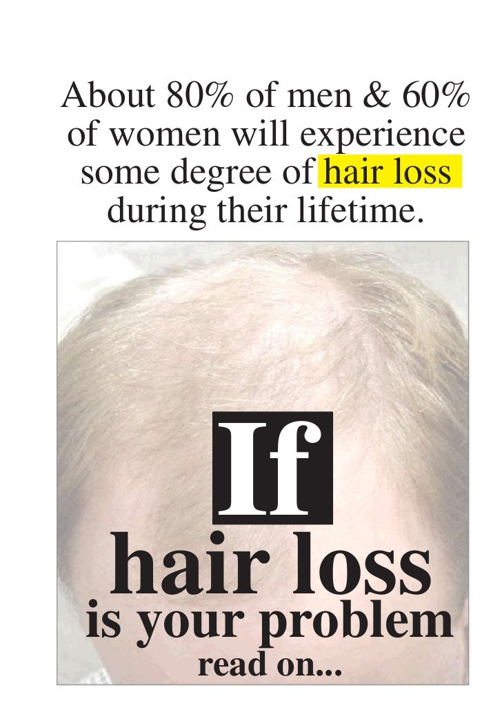 Segals Solutions for Hair Loss & Thinning Hair
