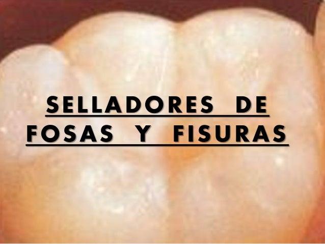 SELLADORES DE FOSAS Y FISURAS