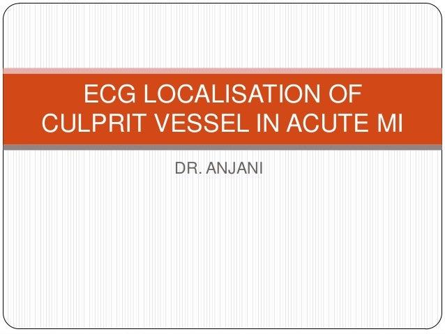 DR. ANJANI ECG LOCALISATION OF CULPRIT VESSEL IN ACUTE MI