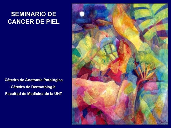 SEMINARIO DE CANCER DE PIEL Cátedra de Anatomía Patológica Cátedra de Dermatología  Facultad de Medicina de la UNT