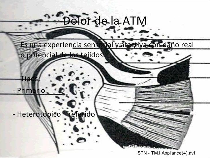 Dolor de la ATM <ul><li>Es una experiencia sensorial y afectiva con daño real o potencial de los tejidos. </li></ul><ul><l...