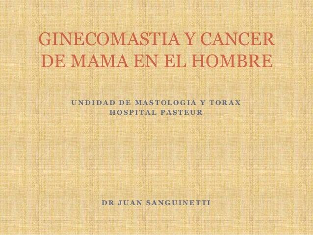 GINECOMASTIA Y CANCER DE MAMA MASCULINO, DR JUAN SANGUINETTI