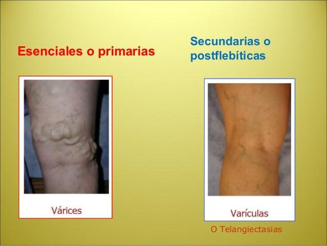 Los medios para el tratamiento varicoso