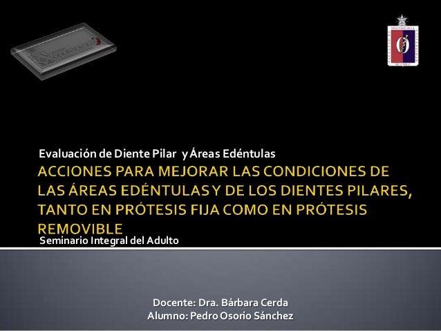 Evaluación de Diente Pilar y Áreas EdéntulasSeminario Integral del AdultoDocente: Dra. Bárbara CerdaAlumno: Pedro Osorio S...