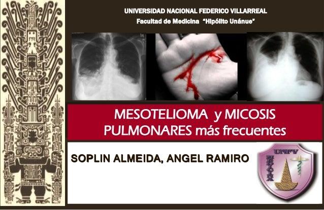 """UNIVERSIDAD NACIONAL FEDERICO VILLARREAL Facultad de Medicina """"Hipólito Unánue"""" MESOTELIOMA y MICOSIS PULMONARES más frecu..."""