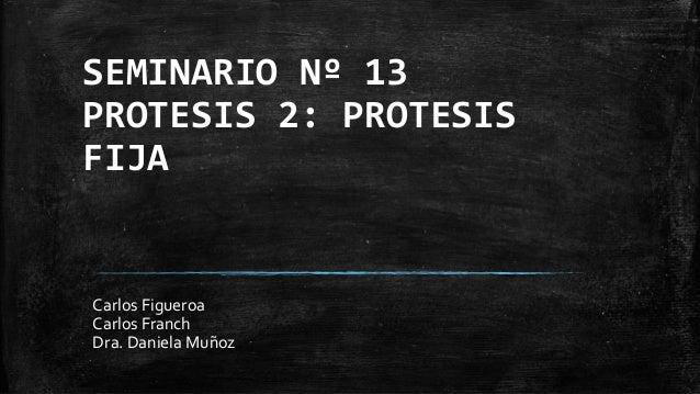 SEMINARIO Nº 13 PROTESIS 2: PROTESIS FIJA Carlos Figueroa Carlos Franch Dra. Daniela Muñoz