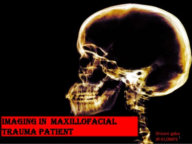 Imaging in maxillofacial trauma patient Shivani gaba JR-III,OMFS 1