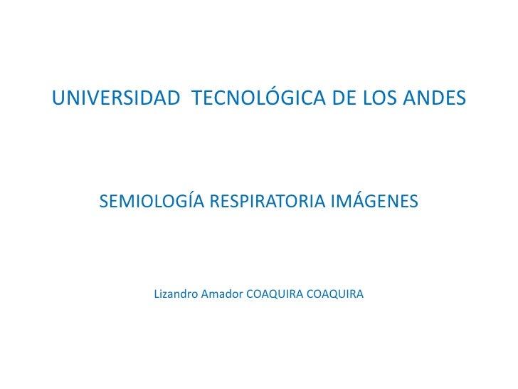 UNIVERSIDAD  TECNOLÓGICA DE LOS ANDES<br />SEMIOLOGÍA RESPIRATORIA IMÁGENES<br />Lizandro Amador COAQUIRA COAQUIRA<br />