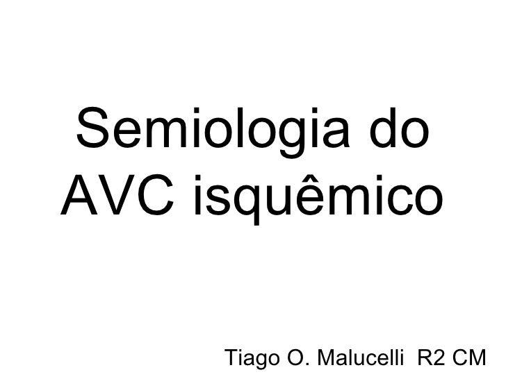 Semiologia do AVC isquêmico Tiago O. Malucelli  R2 CM