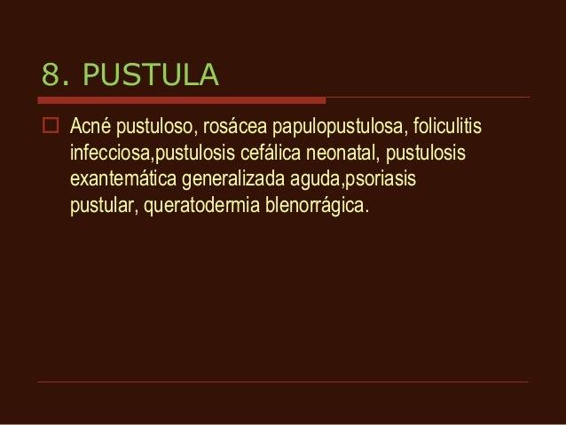 La psoriasis la descripción y la foto