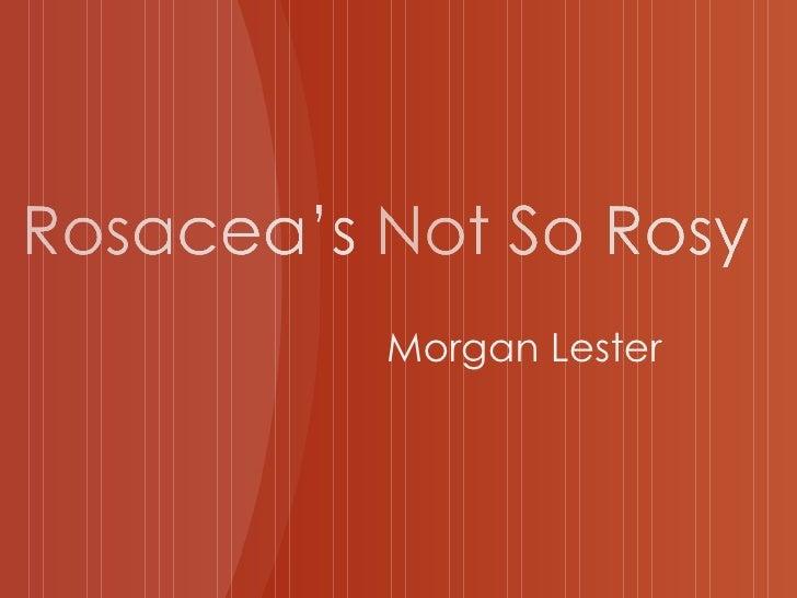 Morgan Lester