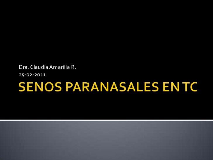 SENOS PARANASALES EN TC<br />Dra. Claudia Amarilla R.<br />25-02-2011<br />