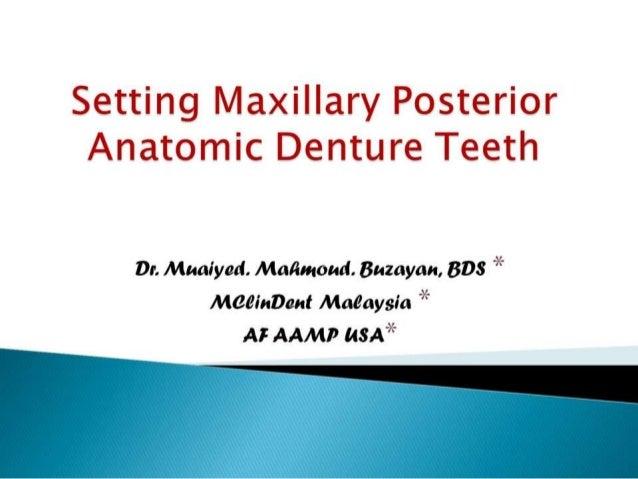 Setting maxillary posterior anatomic denture teeth cd 2nd yr