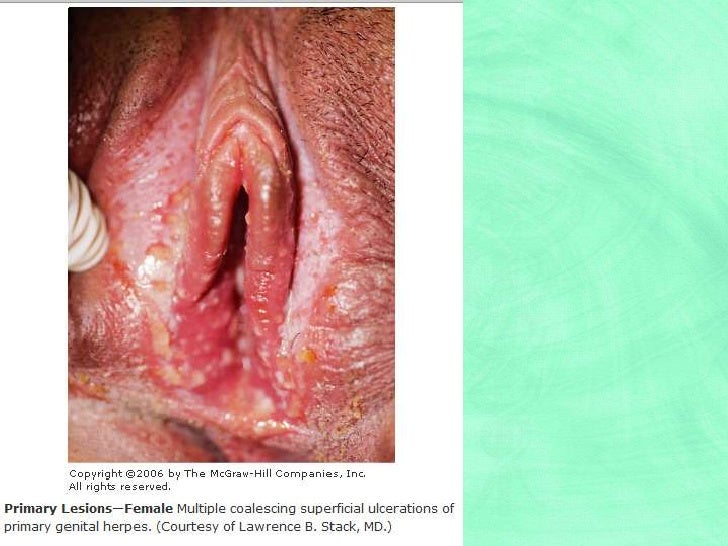 Is herpes sexually transmitted