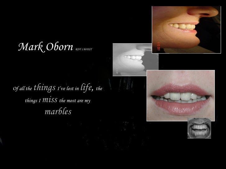 Mark Oborn  RDT LBIDST Of all the  things  I've lost in  life ,  the things I  miss  the most are my  marbles