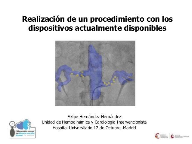 Realización de un procedimiento con los dispositivos actualmente disponibles - Dr. Felipe Hernández