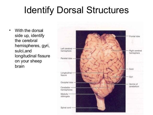 Sheep brain anatomy diagram