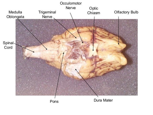 Sheep Brain Dissection - Diatom on a String