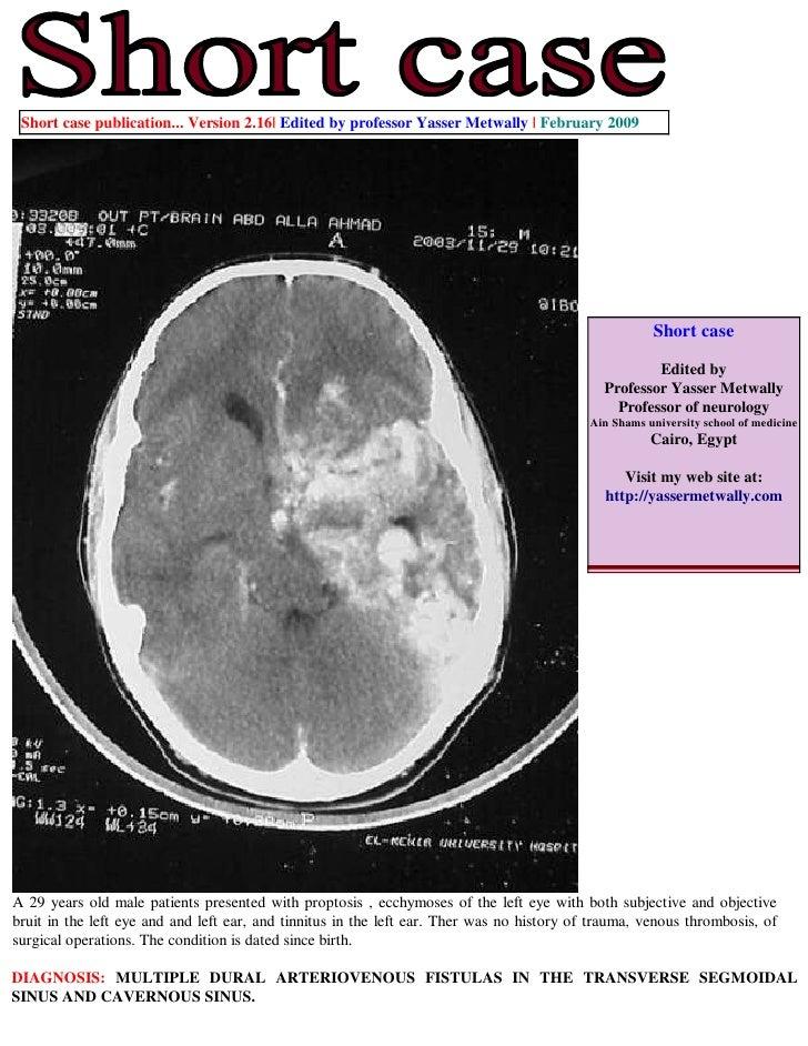 Short case...Multiple dural arteriovenous fistulas