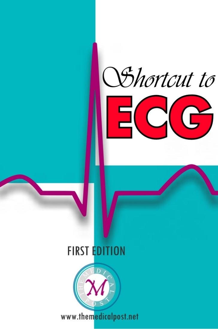 Shortcut to ECG