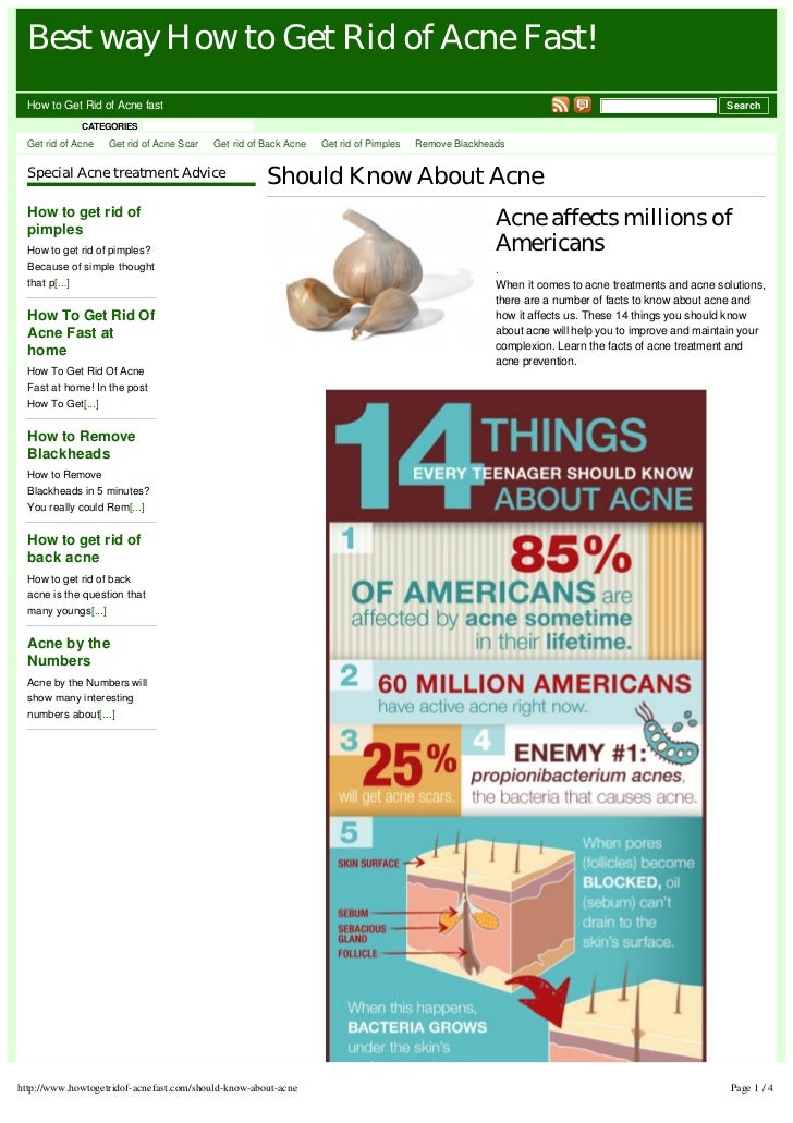 Should know-about-acne