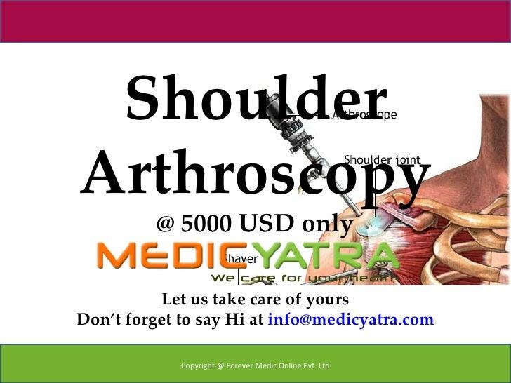 Shoulder Arthroscopy surgery & Treatment