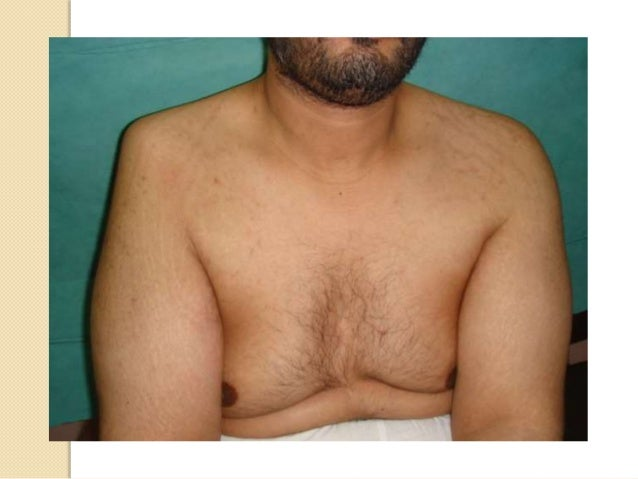 Shoulder Dislocations Band Shoulder Dislocation With Band