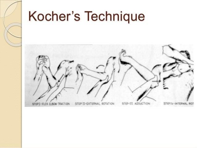 Shoulder Dislocations Treatment Shoulder Dislocation