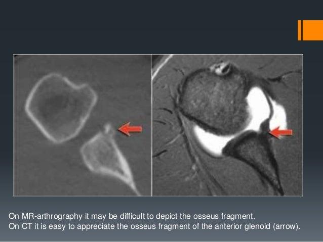 How to Diagnose a Torn Shoulder Labrum recommend